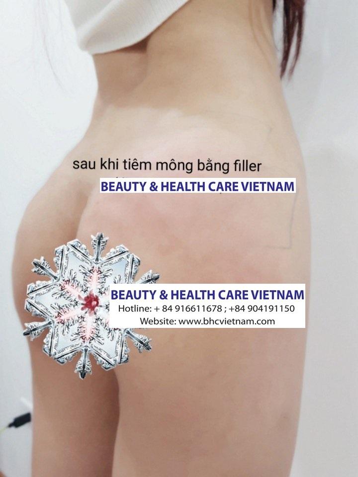 Tiêm Gana-Ha-Body để tăng kích cỡ mông (hông)
