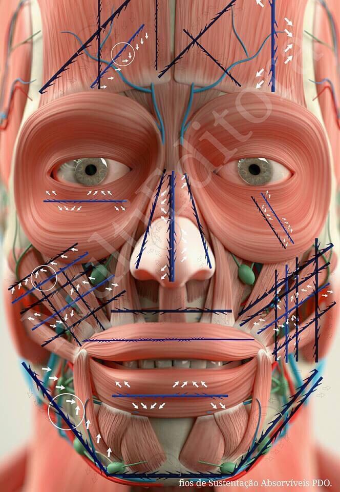 Cách xài chỉ nâng cơ, tăng sinh collagen