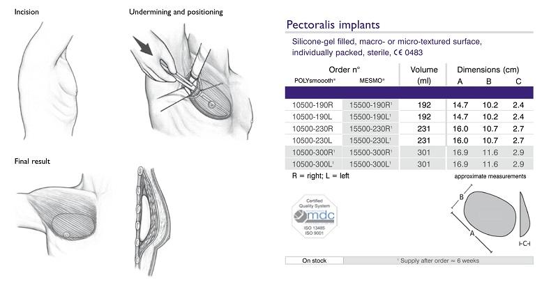 Kích cỡ Mô cấy ngực nam nhân tạo-Polytech Pectoral Implant