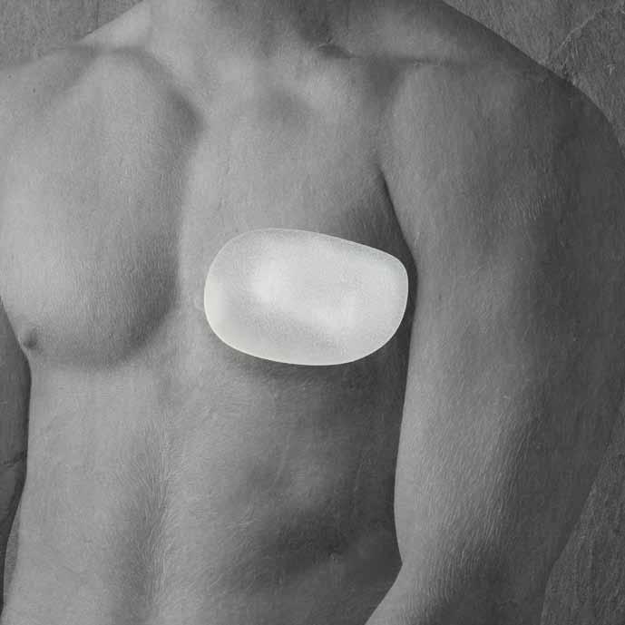 Mô cấy ngực nam nhân tạo-Polytech Pectoral Implant