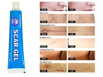 Scar Gel: Kem trị sẹo Mỹ, giá rẻ, hiệu quả cao