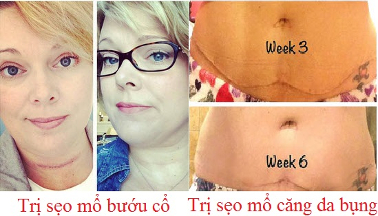Kết quả sau 6 tuần trị sẹo lồi bằng Scarguard 30ml