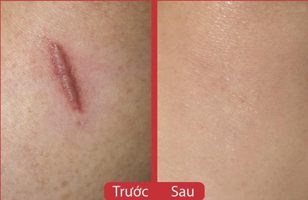 Scarguard 15ml: Kem trị sẹo lồi, sẹo phì đại hiệu quả nhanh nhất