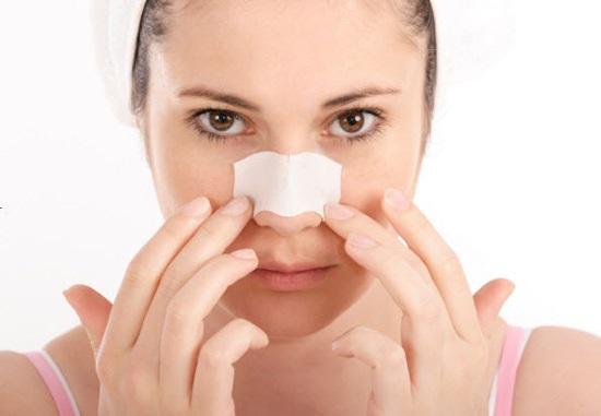Khi nào có thể tháo nẹp mũi sau khi nâng mũi