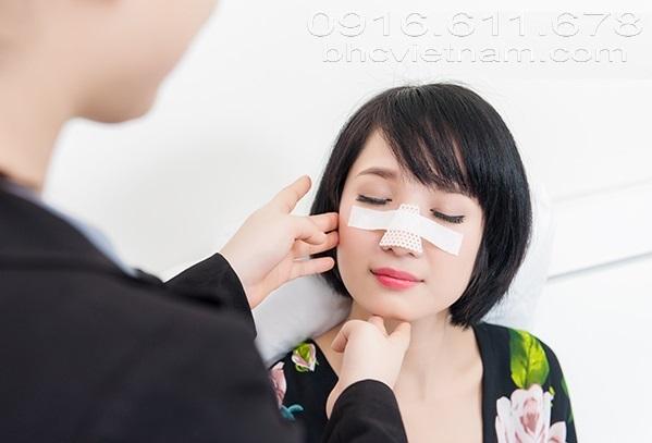 Nâng mũi bao lâu thì tháo nẹp