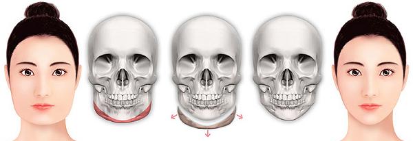 Mô phỏng cắt gọt góc hàm, tạo mặt V-Line