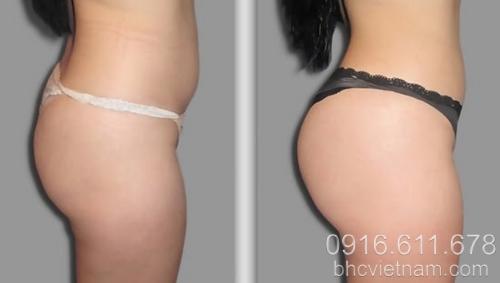Phẫu thuật nội soi hay ăn gì để mông to hơn?