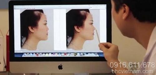 Cách nâng mũi không phẫu thuật và quy trình phẫu thuật nâng mũi